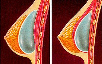 La demanda de cirugía plástica mamaria crece un 10% en los últimos dos años en Navarra